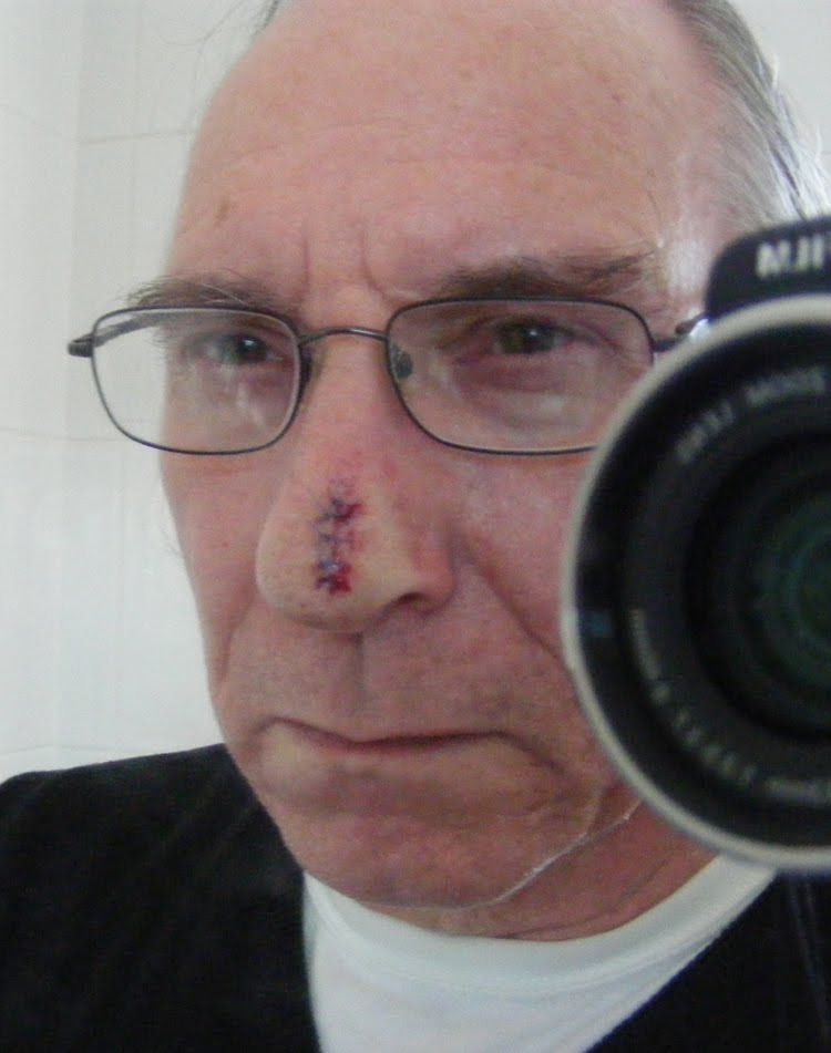 Ugly Scab On Nose
