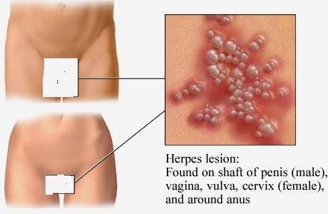 Herpes Symptoms Oral herpes and genital herpes symptoms    Herpes