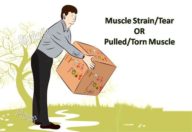 Muscle Strain cause: heavy weight lifting
