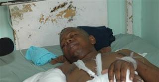 Amputan una pierna a joven herido en accidente en la Seis de Noviembre
