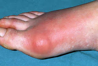 Gout Causes, Symptoms, Diagnosis, Treatment, Prevention And Medications