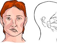 Gejala Dan Cara Mengurangi Resiko Terkena Penyakit Stroke