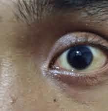 Tips Cara Menjernihkan Mata Kuning Dan Merah Secara Aman Dan Cepat