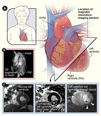 diagnosis of cardiac arrest