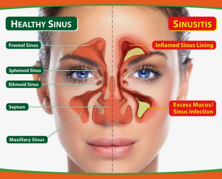 Chennai Sinusitis Headache  Specialty Treatment Cliic, Velachery, Chennai, Tamil nadu, India, dr.sendhil kumar, panruti