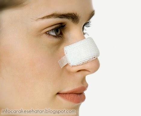 Cara Ampuh Menghilangkan Komedo di Hidung