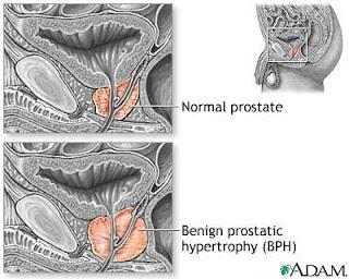 BPH Benign Prostatic Hypertrophy