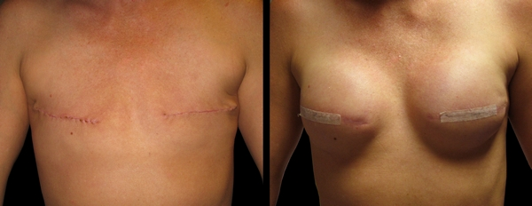 Breast reconstruction and radiation