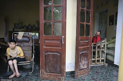 Terceira geração de vítimas Vietnamitas ainda sofrem os terríveis efeitos do produto químico Agente Laranja.