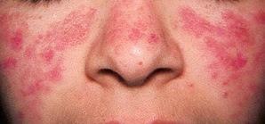 Penyakit Lupus Gejala dan Penyebabnya