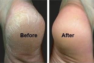 Image result for testimoni tumit kaki pecah