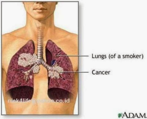 Penyakit kanker paru-paru