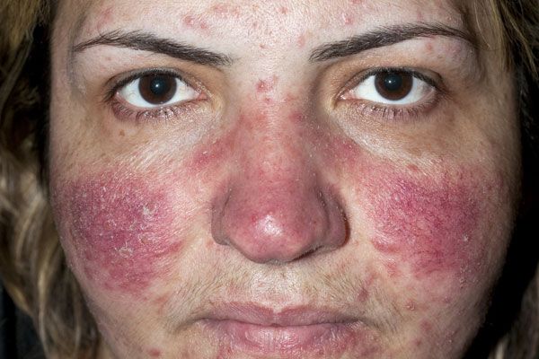 Treatment information facial rosacea the purpose