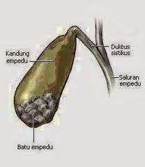 Obat Penyakit Batu Empedu