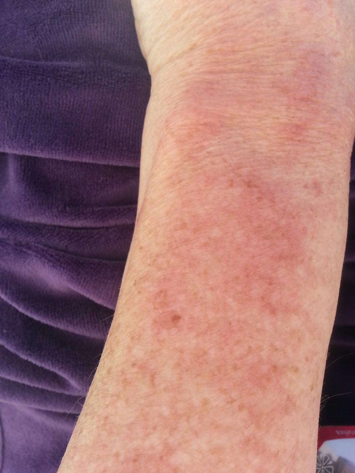 Hudhelse og ungdom: Utslett på armene som klør