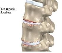 Modul de depistare si tratamentul discopatiei lombare