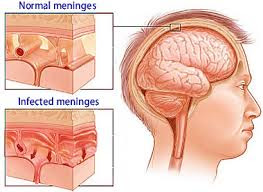 Nursing Diagnosis and Nursing Intervention for Meningitis