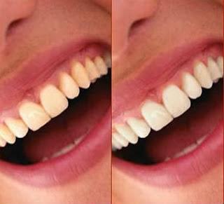 agua-oxigenada-clareia-os-dentes