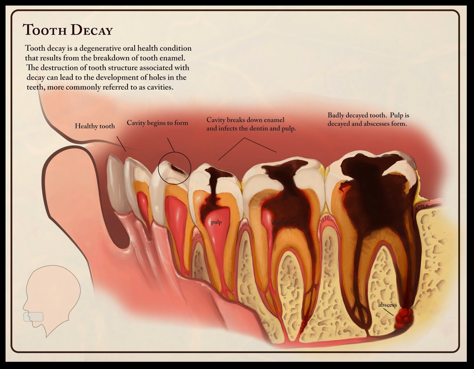 What causes tooth decay in adults