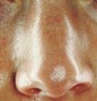 tips mengatasi hidung berminyak