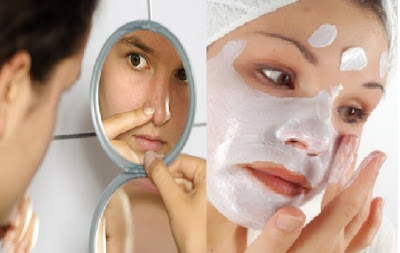 Homemade Facial Masks for Acne and Blackheads