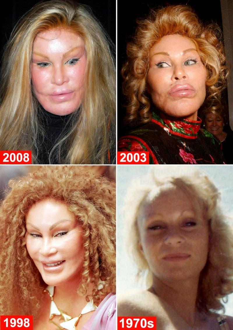 Jocelyne wildenstein chirurgie esthétique la plus cher au monde 1