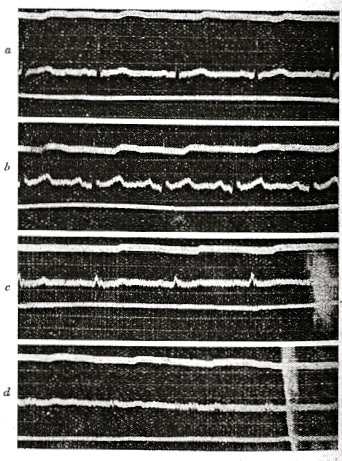 Кардиограмма эксперимента по остановке сердца при участии Тирумалаи Кришнамачарьи.