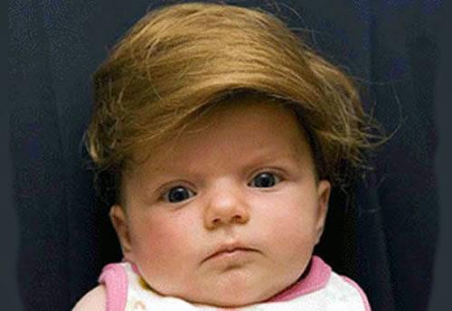 Baby Toupee photo