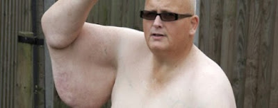 bekas lelaki paling gemuk di dunia