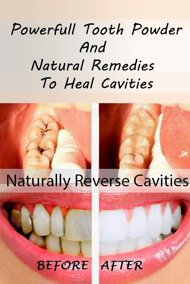 How to Heal Cavities Naturally
