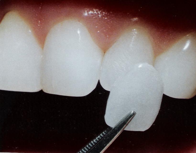 Resultado de imagen de carillas dentales.