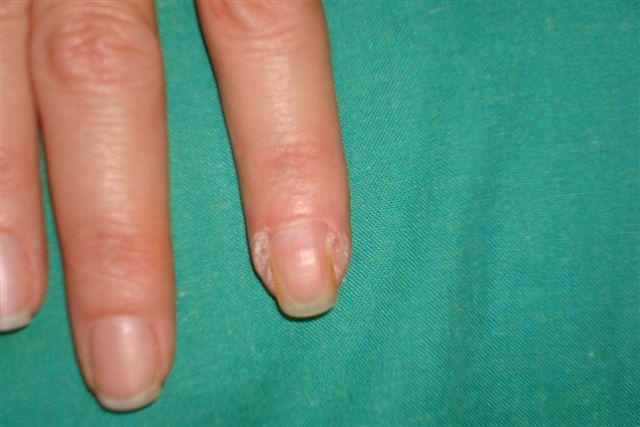 Como eliminar las verrugas de los dedos y manos como se - Como se quitan las manchas de aceite ...