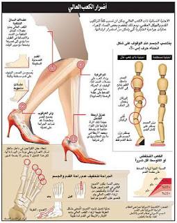 مخاطر وأضرار ارتداء احذية الكعب العالي وهل يؤثر على الحمل ؟!