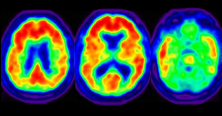 Should My Patient Get An Amyloid Pet Scan For The