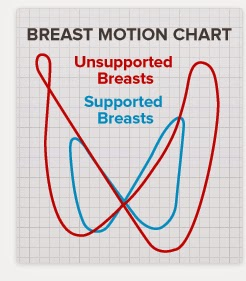 Unsupported breast and supported breast