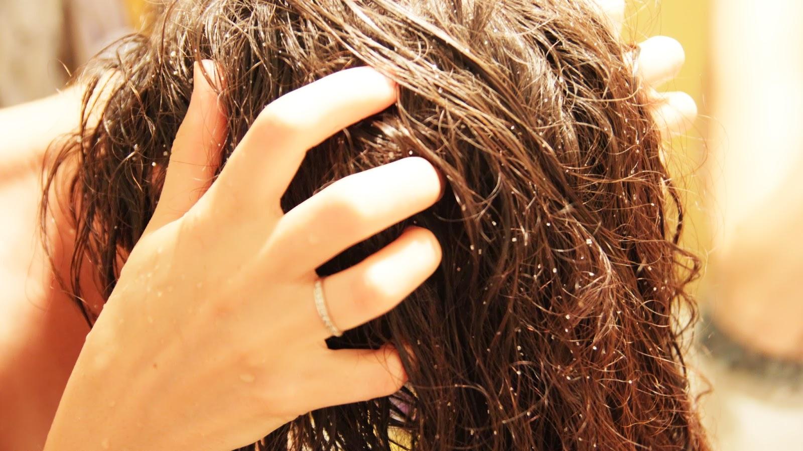 Как вылечить себорею на коже головы 99
