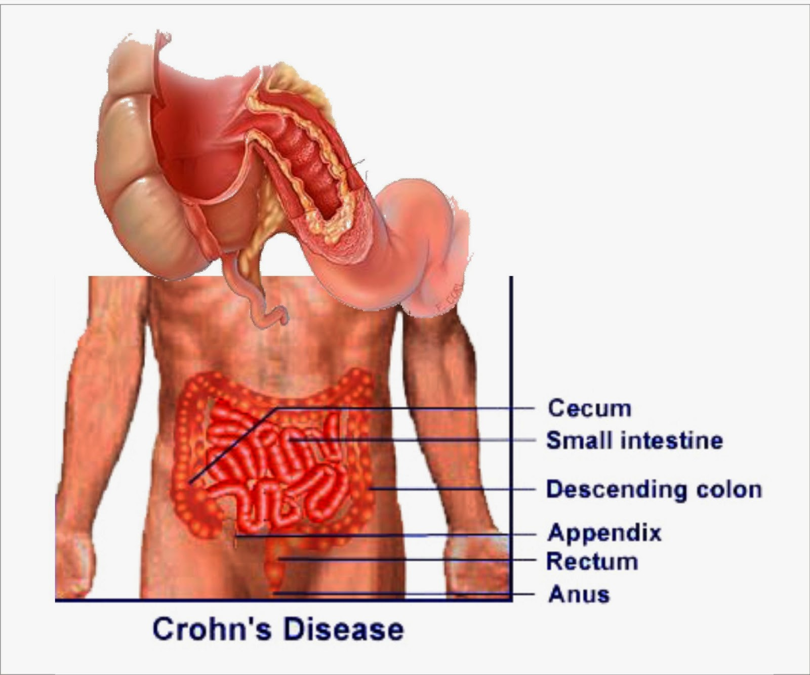 The Crohn, Disease wallpaper