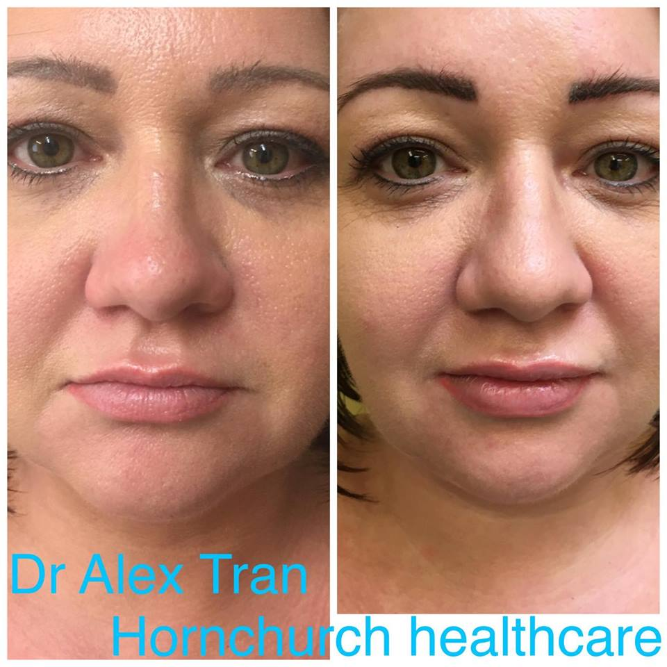 Lip Augmentation with Dr Tran at Hornchurch Healthcare