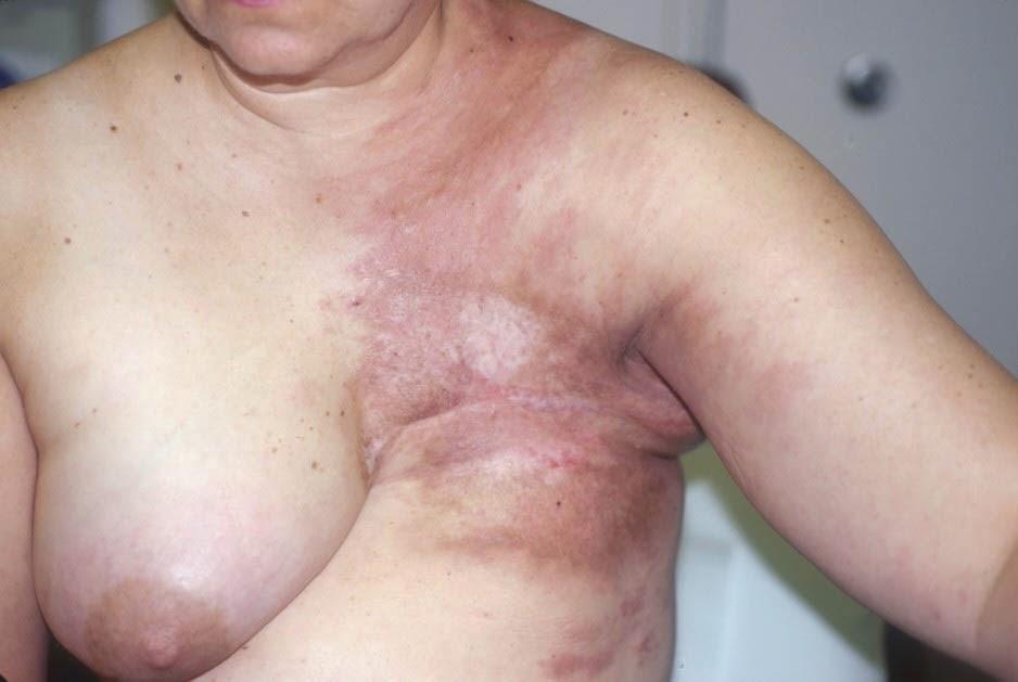 boob disease three