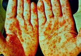 penyakit sipilis yang sudah merambat tubuh