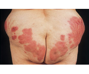 Causes of urticarial vasculitis include connective tissuedisorder  SLE    Urticarial Vasculitis Bruising