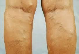5 Treatment Aman Hilangkan Varises