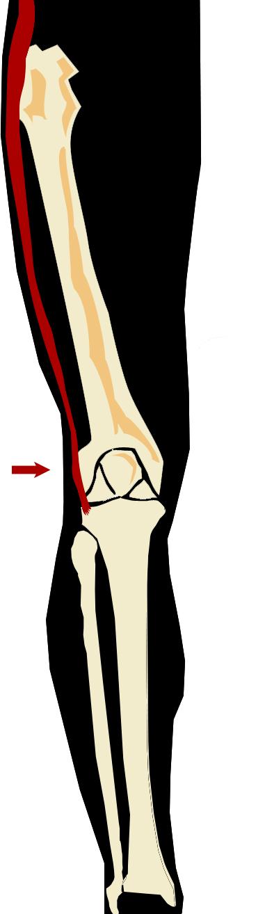Läuferknie, IT Band Syndrom: Anatomie, Biomechanik