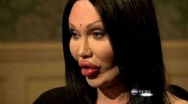 women with ugly plastic surgery