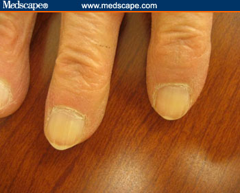 Genes That Don't Fit!: Did You Know That Your Fingernails ... B12 Deficiency Nails