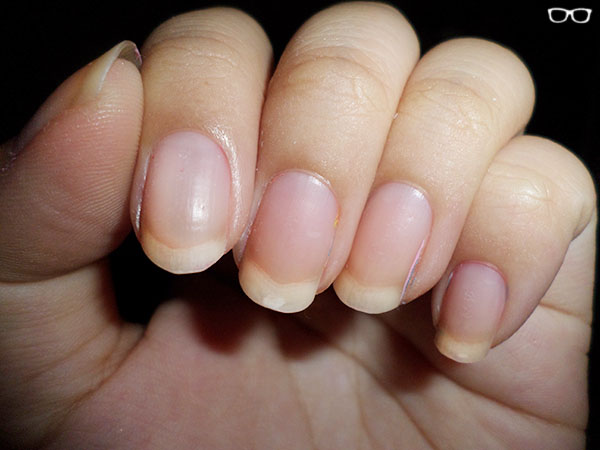Picture of Nails Before Bare