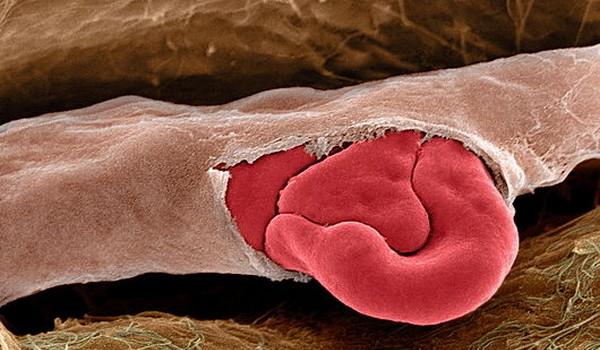 Imagenes microscopicas
