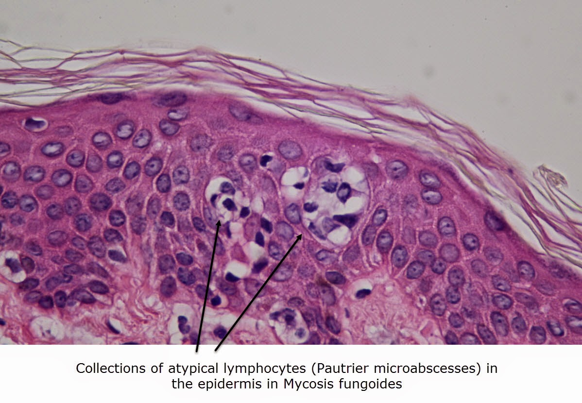 oral mycosis fungoides essay