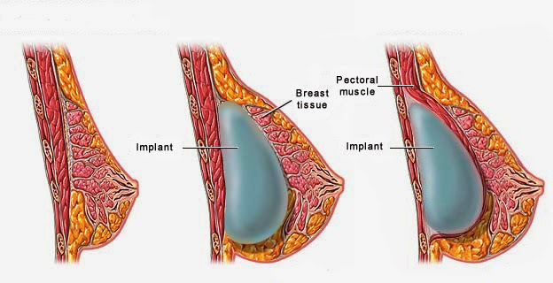 Using Massage for Natural Breast Enlargement