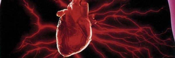 ¿Qué es la aterosclerosis coronaria?